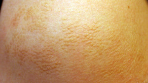 Fig. 1: Slightly hyperpigmented plaque, composed of densely grouped papules on the left shoulder.