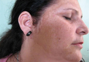 Fig. 1: Patient No 1 before treatment with MelanilTM cream.