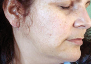 Fig. 2: Patient No 1 after 4 weeks treatment with MelanilTM cream.