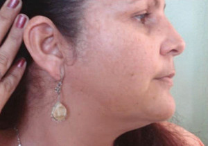 Fig. 3: Patient No 1 after 8 weeks treatment with MelanilTM cream.