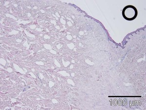Fig. 10: Microscopy of a scarred tissue explant subjected to triamcinolone hydroporation. The tissue section reveals a homogenous deposition of the drug within the dermis. However denser scar tissue has not been penetrated (H&E). On top of this there was a higher tendency of an epidermal damage.