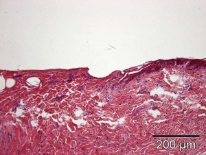Fig. 7: Hydroporation over 60 s in a defined area led to a complete loss of the epidermis, dermal vacuole formation, and localized separation of dermal fibre bundles.