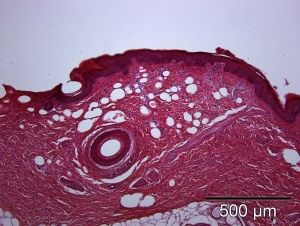 Fig. 6: Hydroporation over 30 s in a defined area led to vacuole formation, removal of the stratum corneum and circumscribed epidermal loss. Localized separation of dermal fibre bundles are visible.