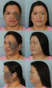 Fig. 3: Giant CMN Grade G2 - Cosmetic Camouflage - Thin Lizzy System [10]. (Acknowledgement: Wendy Nowell-Usticke of Thin Lizzy Auckland, New Zealand for her contribution to the management of this case via an Internet-based Joint Management Clinic.)
